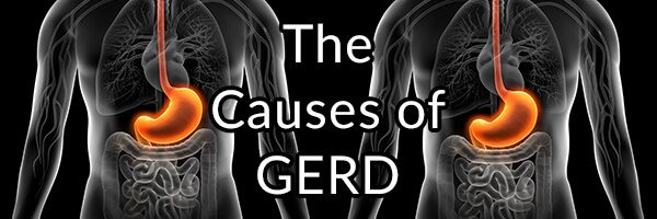 GERD (Heartburn), Causes, Treatment Issues, Supplements, and Relief
