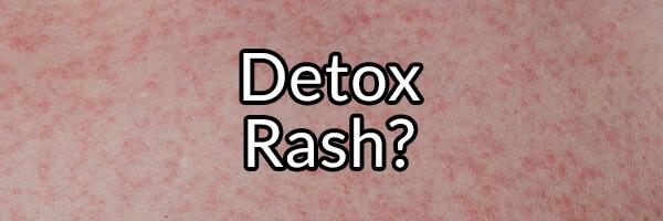 sugar detox rash