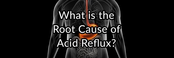 The GERD Enigma: What is the Root Cause of Acid Reflux?